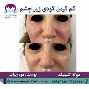 کاهش گودی زیر چشم
