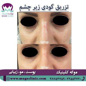تزریق گودی زیر چشم