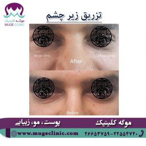 تزریق زیر چشم