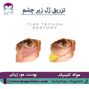 تزریق ژل زیر چشم