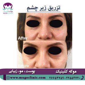 رفع گودی زیر چشم