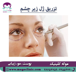 بهترین کلینیک تزریق ژل زیر چشم
